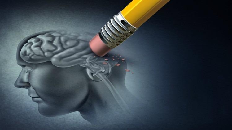 Alzheimer trieu chung